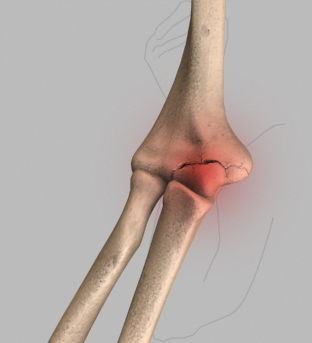 Elbow Injuries