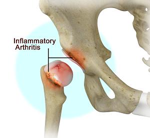 Inflammatory Arthritis Of The Hip