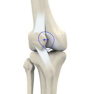Recurrent Patella Dislocation